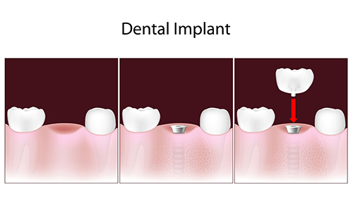 dental implants in Northbrook